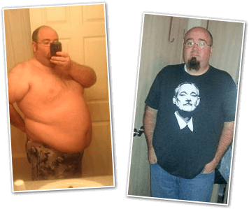 James T. Before and After Pictures